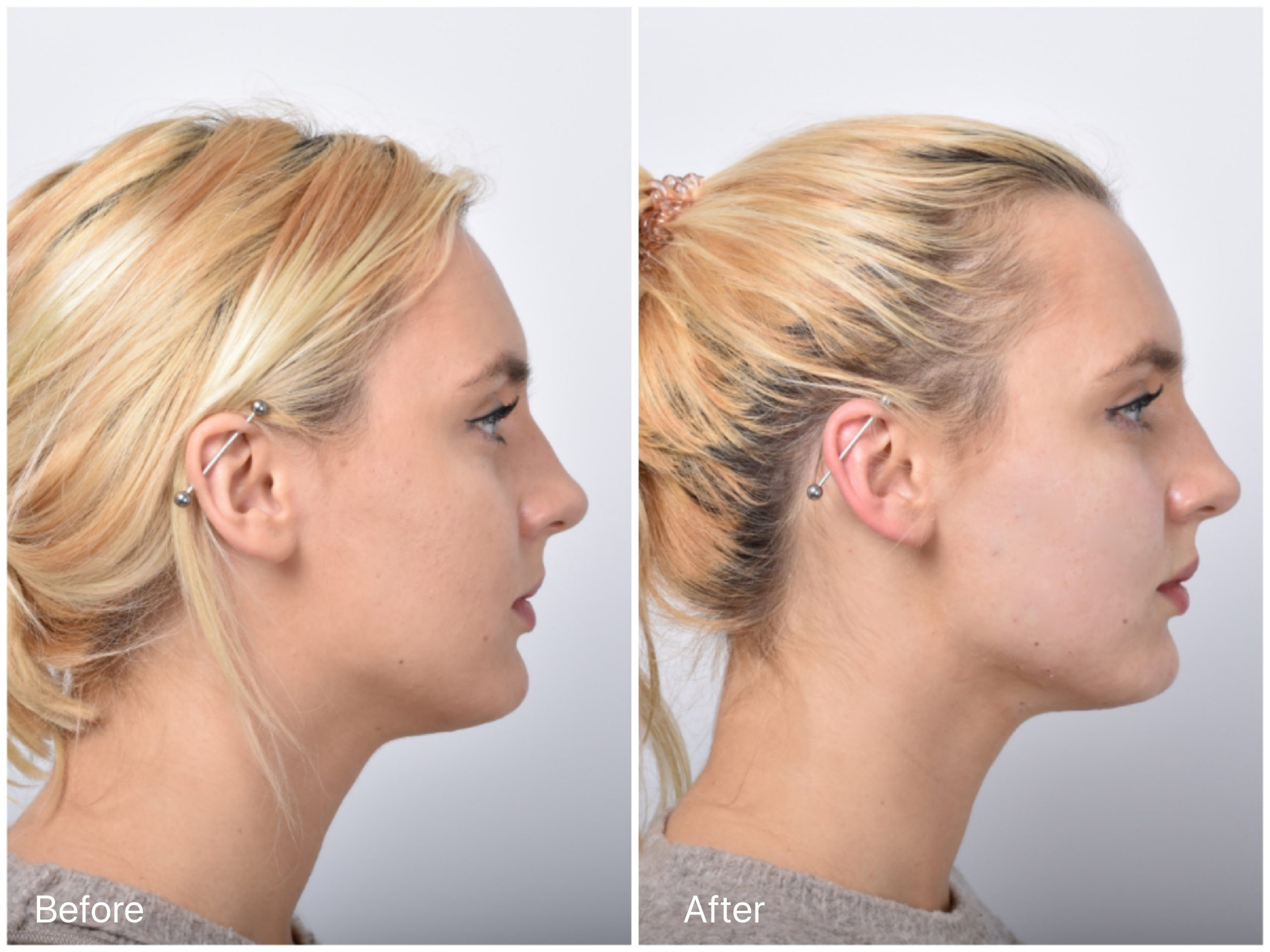 FAQ About PDO Thread Lift – Know How Long Does It Last?